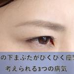 片目の下まぶたがぴくぴく痙攣!考えられる3つの病気
